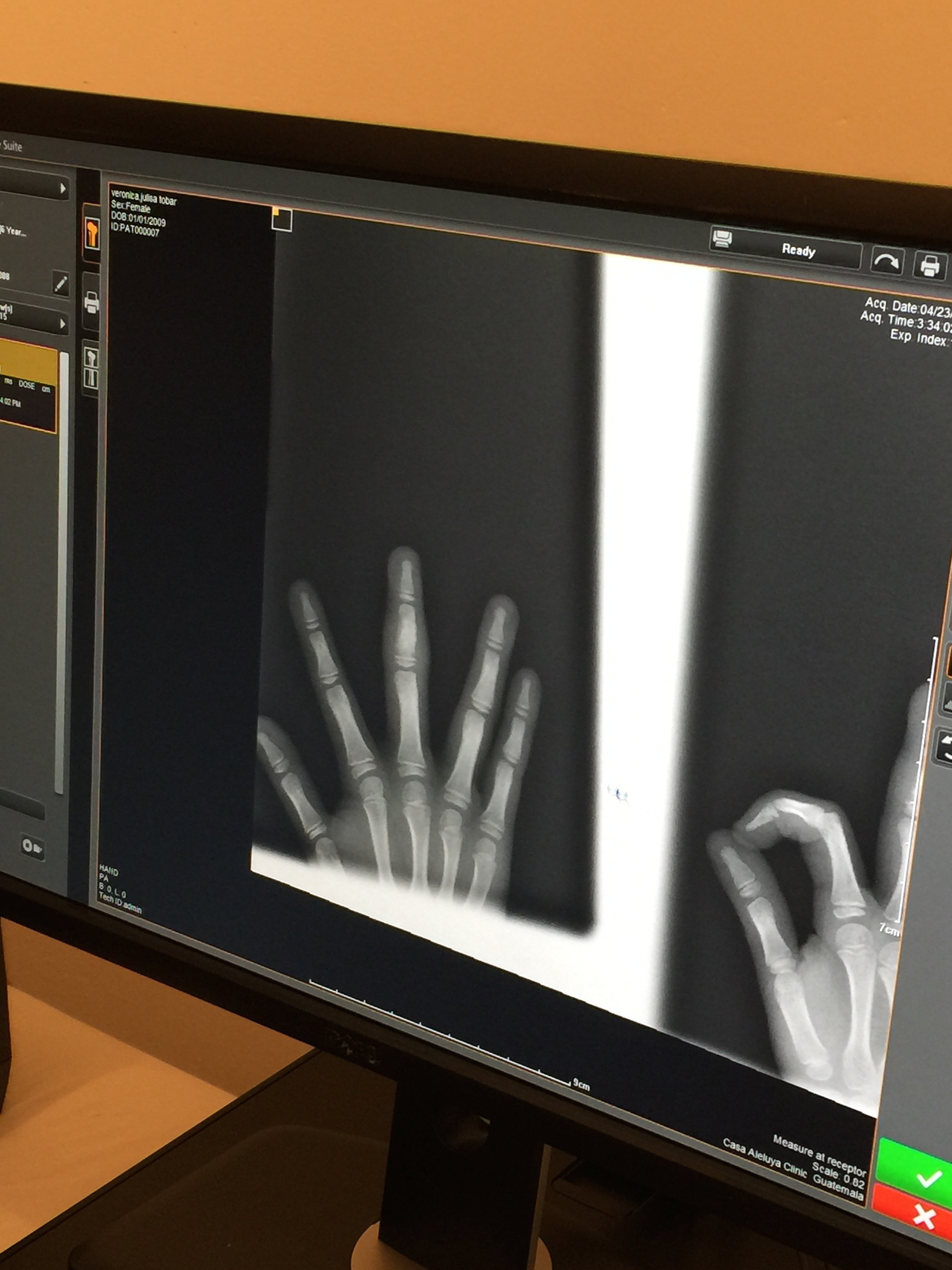 The first digital x-ray taken at Casa and......